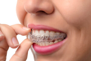 invisalign braces - orthodontic treatment